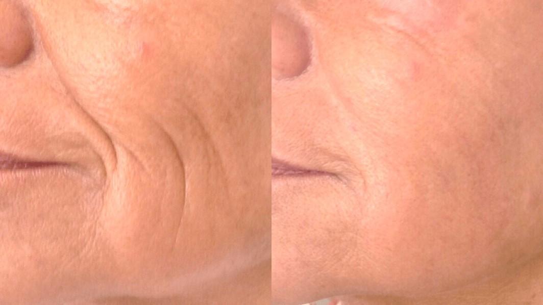 (左)照射前 (右)5回治療60日目